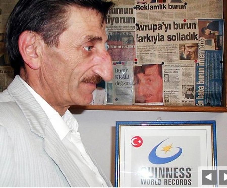 بزرگترین دماغ دنیا در ترکیه!!!